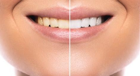 weiße oder natürliche Zähne Zahnarztpraxis Dr. Simone Gangl Ahrweiler Blog